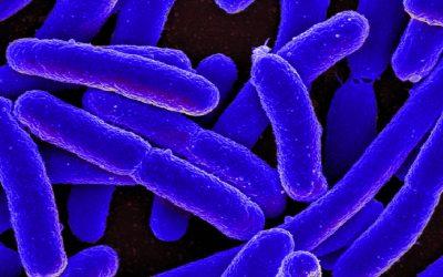 Intoxicación Alimentaria – Listeriosis